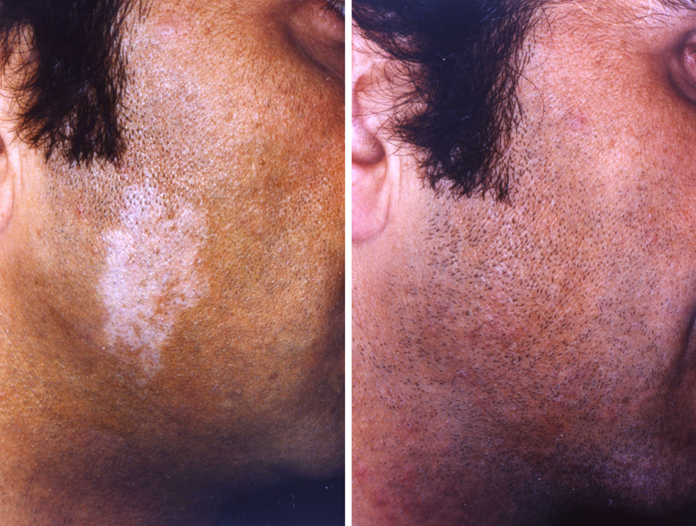 Re-pigmentation of stable vitiligo by means of timedsurgical de-epithelialisation and the application of cultivated melanocytes and keratinocytes.