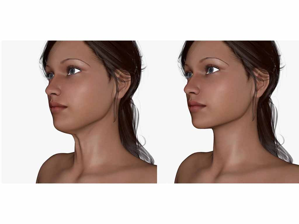 Elastic-lifting -of the-Lower-Neck -procedure