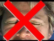 Upper-eyelid-rejuvenation-with-0.5-timedsurgical-peeling-