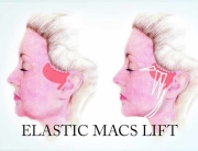 Elastic-Macs-Neck-lift-minimal-scar-and-dissection