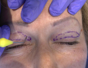 Non-ablative_blepharoplasty_b_ means_ of_mixed_peeling_0.5_preview