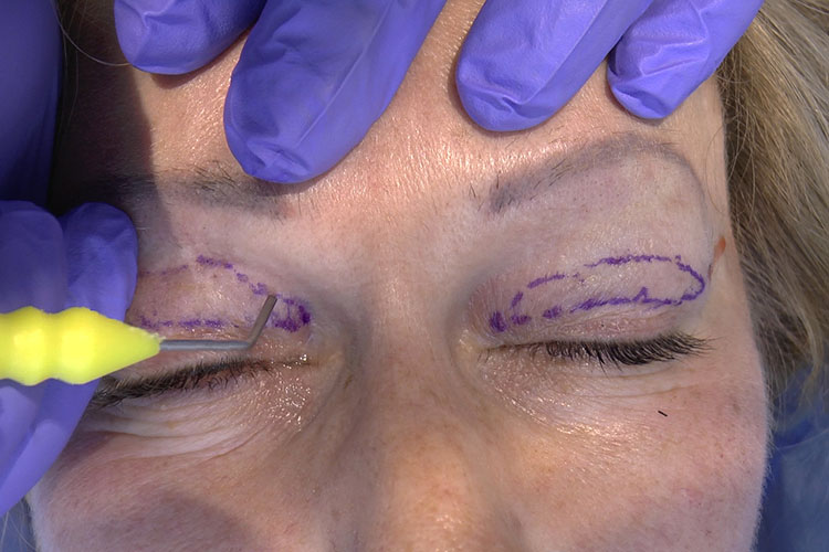 non-ablative blepharoplasty by means of mixed peeling 0.5