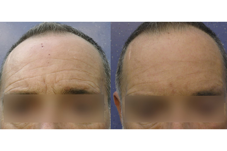 Living_intradermal_filler